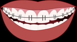 גשר בשיניים לילדים כל מה שצריך לדעת לפני ההליך-